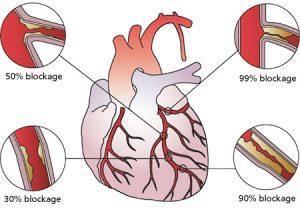 Ayurvedic treatment for heart blockage