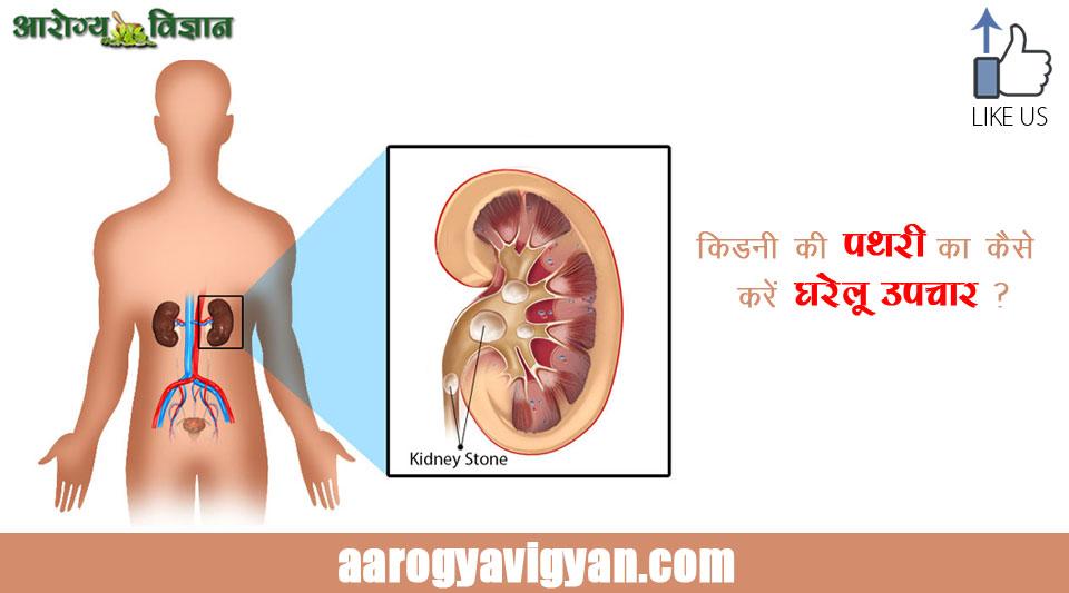 kidney-stone-home-remedies - Aarogya Vigyan